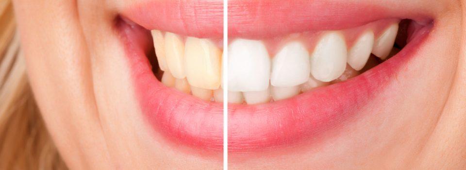 Zoom Teeth Whitening London Uk Cost 399